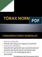 TÓRAX NORMAL clase
