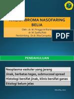 angiofibroma ppt (1)