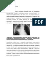 medicina rayos x