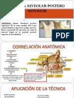 Tecnica Anestesica nervio alveolar superior