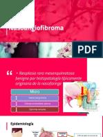 Na So Angio Fibroma 1