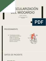 Revascularización Del Miocardio Seminario