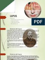 Lupus Grupo