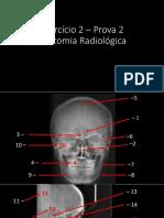 Exercício 2 P2-Anatomia Rad. CRÂNIO