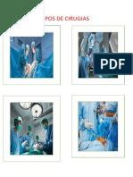 Tipos de Cirugias