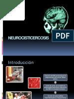 neurocisticercosis
