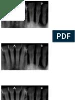 Radiografía (Periodoncia)