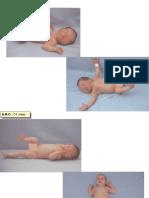 Diapontogenesi 0-3 mesi ok.ppt