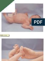Diapontogenesi 0-03 mesi.ppt