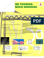 43. Nueva tecnica anestesica de bloqueo ungueal.pdf