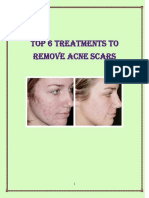 Sean Lowry's-The Fast Home Scar Removal