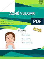 Dermatología - Acné vulgar
