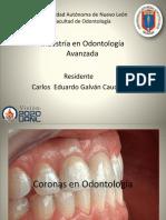 coronas protesis fija