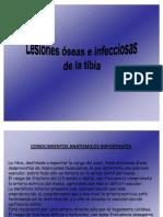 Lesiones Oseas e Infecciosas de Tibia Roche Rodriguez Benitez