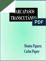 Marcapasos transcutaneo