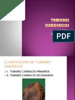 TUMORES_CARDIACOS[1]