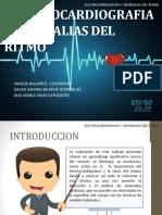 5. Seminario de EKG