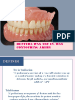 Denture try in
