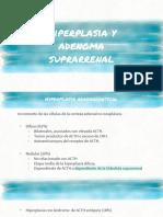 Hiperplasia y Adenoma Suprarrenal