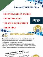 HIPERTENSION ARTERIAL.ppt