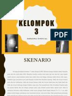 SARKOMA SINOVIAL PPT.pptx
