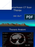 Teknik Pemeriksaan CT Scan-Thorax