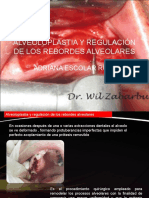 144397156 Alveoloplastia y Regulacion de Los Rebordes Alveolares Ppt
