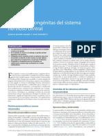 59 - Anomalías congénitas del sistema nervioso central