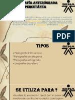 Urografía.pptx
