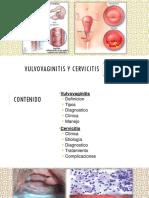 vulvovaginitis y cervicitis
