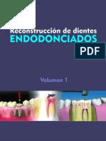 Reconstrucción de los dientes endodonciados