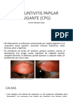 CONJUNTIVITIS PAPILAR GIGANTE (CPG).pptx