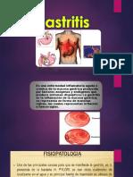 4 Gastritis