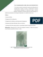 Fracaso endodontico