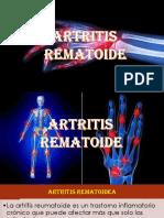 Artritis      rematoide.pptx