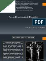 Angioresonancia Carotidea