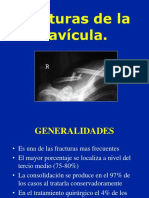 02-Clavicula fractura.ppt