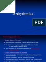 Arrhythmias General