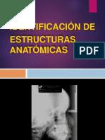 1. Analisis Cefalometria (1)