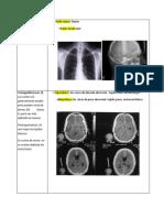 Radiología.Tomografia y resonansia.docx