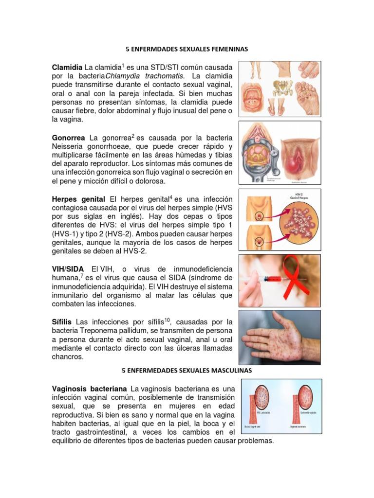 las verrugas genitales pueden causar micción frecuentes