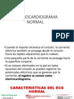 ELECTROCARDIOGRAMA - copia.pptx