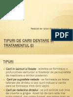 Tipuri de Carii Dentare Si Tratamentul