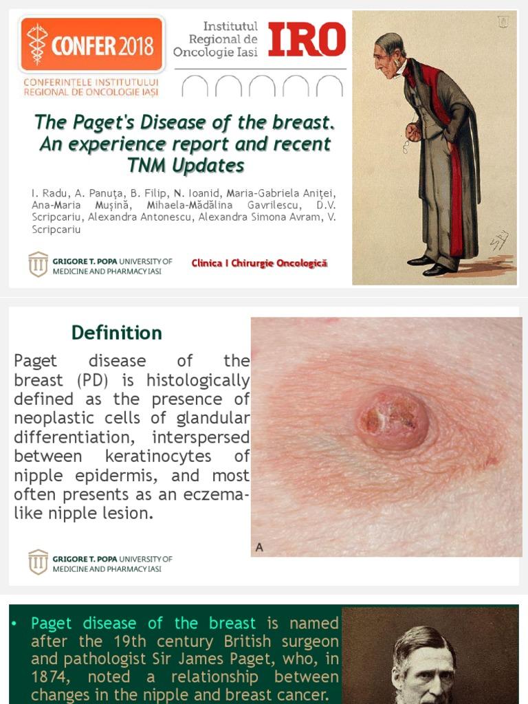 Boala Paget la nivelul sanului