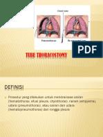 245428687 Chest Tube Thoracostomy