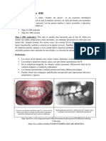 Displasia Dentinaria