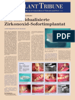 200711DentalTribune_ Bio Implant