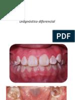 diagnóstico diferencial 2015