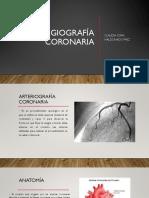 angiografia coronaria
