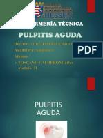 PULPITIS AGUDA CON VIDEO